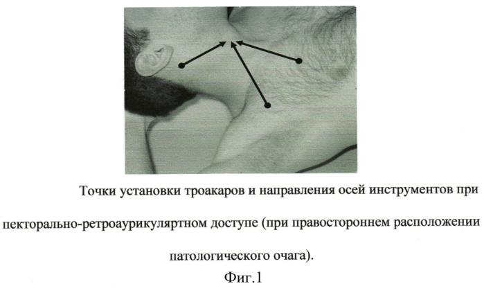 Способ эндовидеохирургического доступа для паратиреоидэктомии
