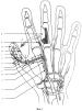 Способ восстановления утраченного первого пальца кисти