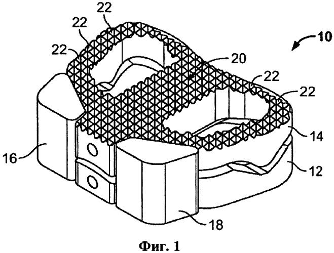 Позвоночный имплантат, инструмент для изготовления и способ применения
