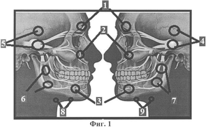 Способ лечения невралгии и неврита тройничного нерва