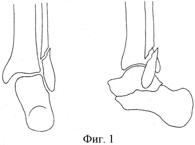 Способ лечения сложных пронационно-эверсионных переломов дистального суставного отдела костей голени