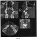 Способ восстановления тканей зубочелюстной системы