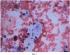 Способ получения клеток и неклеточных элементов атеросклеротической бляшки
