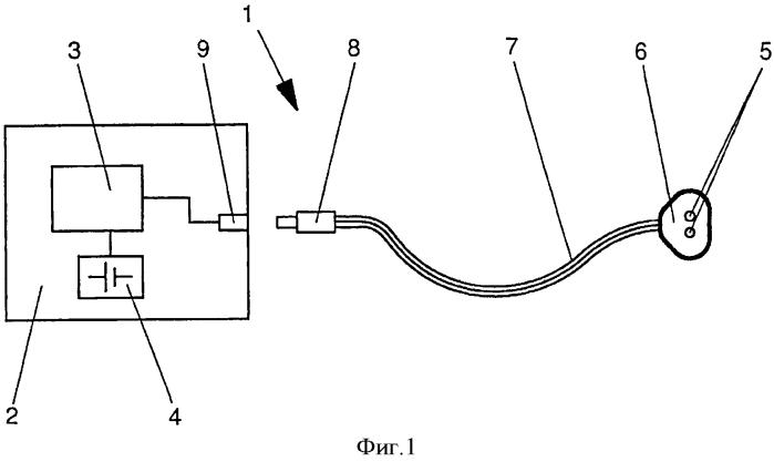 Электрический стимулирующий аппарат
