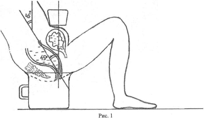 Способ выполнения ультразвуковой видеодефекоскопии у детей