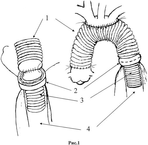 Способ протезирования восходящей и дуги аорты с низведением протеза в истинный просвет расслоенной нисходящей аорты при расслоениях а типа