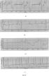 Электрокардиограф для неинвазивной регистрации микропотенциалов на электрокардиограмме в реальном масштабе времени