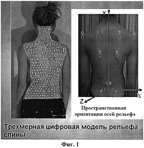 Способ оценки асимметрии формы тела человека по его рельефам