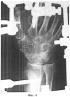 Способ оперативного лечения повреждения ладьевидной кости кисти