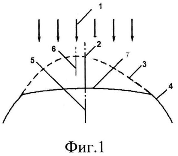 Способ хирургической коррекции сложного неправильного гиперметропического роговичного астигматизма