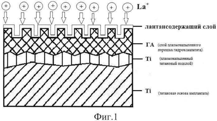Способ получения лантансодержащего биопокрытия титанового имплантата
