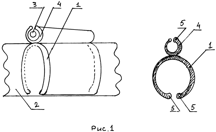 Устройство для фиксации внешнего катетера эндоскопа