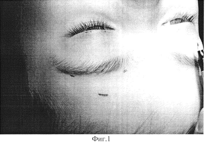 Способ хирургического лечения птоза верхнего века с отсутствием функции леватора у детей