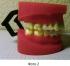 Способ снижения веса с помощью внутриротовых устройств