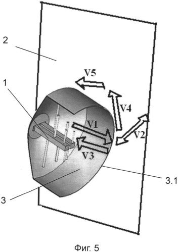 Излучающая антенна в экранирующем корпусе