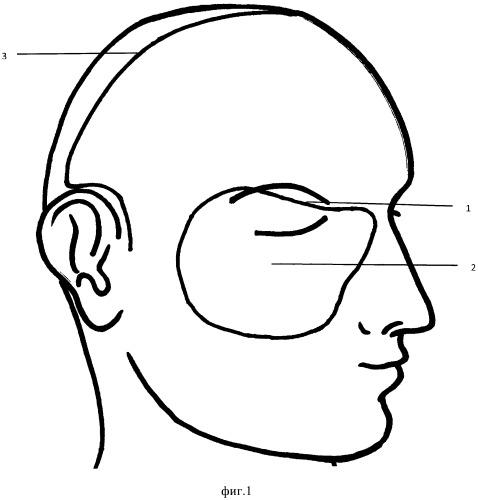 Способ пластического замещения сочетанных дефектов орбиты и граничащих с ней анатомических областей