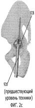Протез для имплантации в канал подвздошной кости