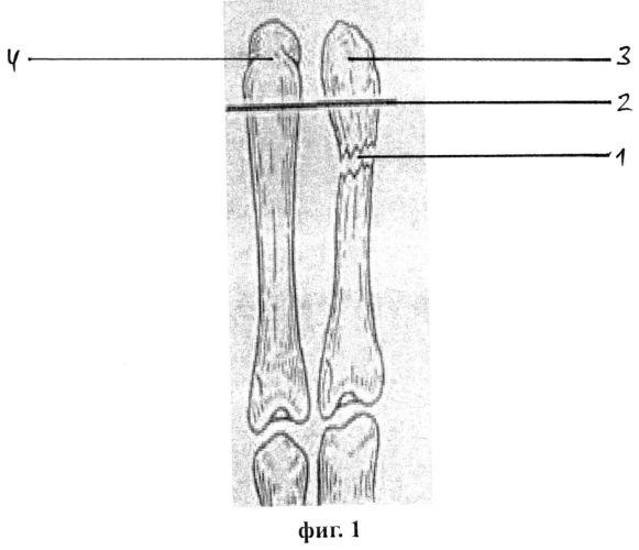 Способ лечения перелома v пястной кости кисти