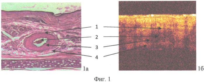 Способ оценки состояния сосудов микроциркуляторного русла