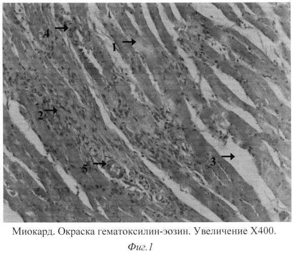 Способ моделирования экспериментальной амилоидной кардиопатии у крыс