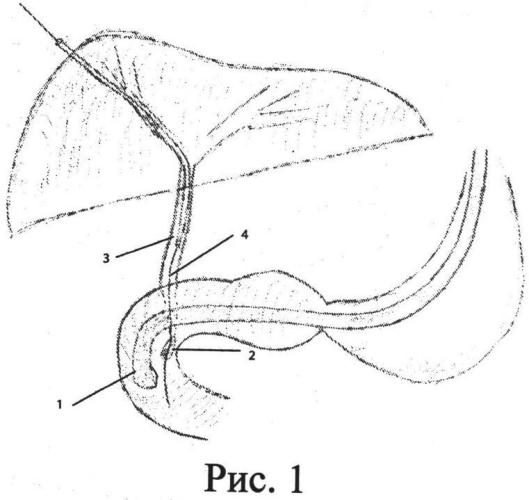 Способ комбинированного малоинвазивного лечения холедохолитиаза при атипичном расположении большого дуоденального соска