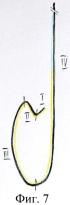 Способ катетеризации коронарных артерий и катетер для его реализации
