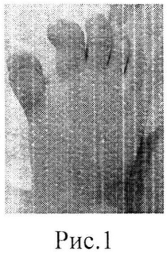 Способ хирургического лечения сложной формы полного удвоения первого луча стопы у детей