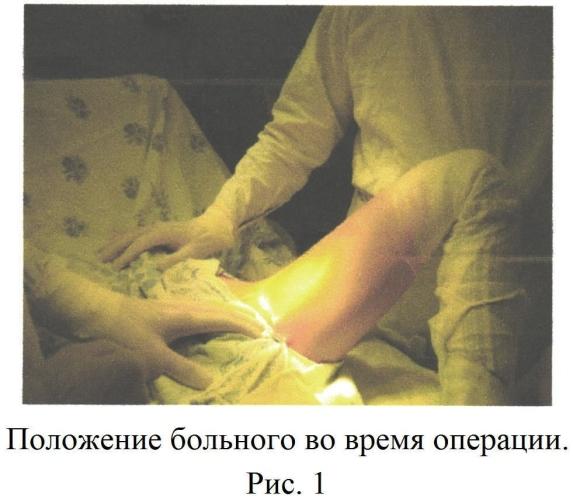 Способ выполнения периацетабулярной тройной остеотомии таза у подростков