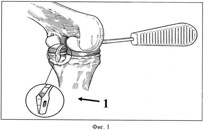 Способ артроскопической реконструкции задней крестообразной связки и набор инструментов для защиты подколенной артерии при его выполнении