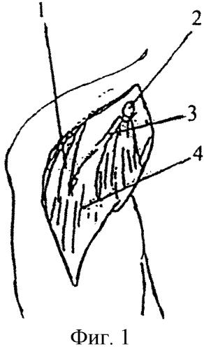 Способ лечения привычного вывиха плеча