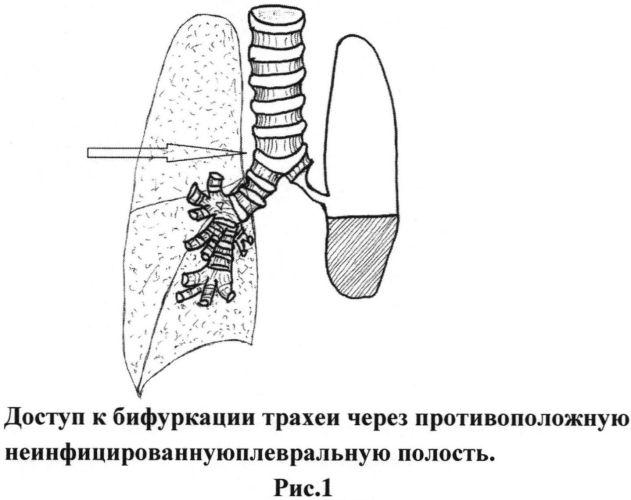 Способ хирургического лечения бронхоплеврального свища, возникшего после полного удаления легкого