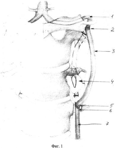 Способ хирургического лечения аневризматического поражения позвоночной артерии на шейном уровне