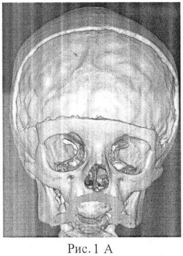 Способ хранения и подготовки к реконструкции костного аутотрансплантата для закрытия дефектов свода черепа у детей