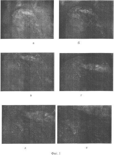 Способ получения микрокапсул аминокислот в конжаковой камеди