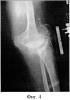 Способ фиксации бугристости большеберцовой кости после ее остеотомии при выполнении доступа к коленному суставу