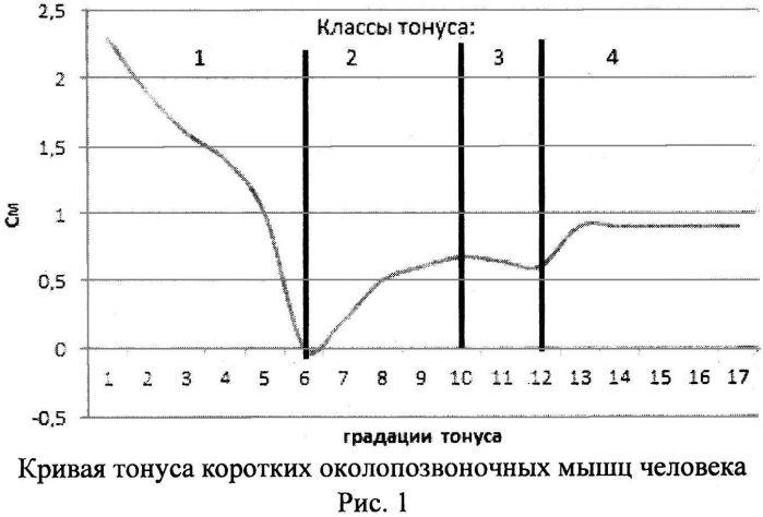 Способ определения состояния тонуса коротких околопозвоночных мышц туловища