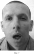 Способ реплантации головки нижней челюсти