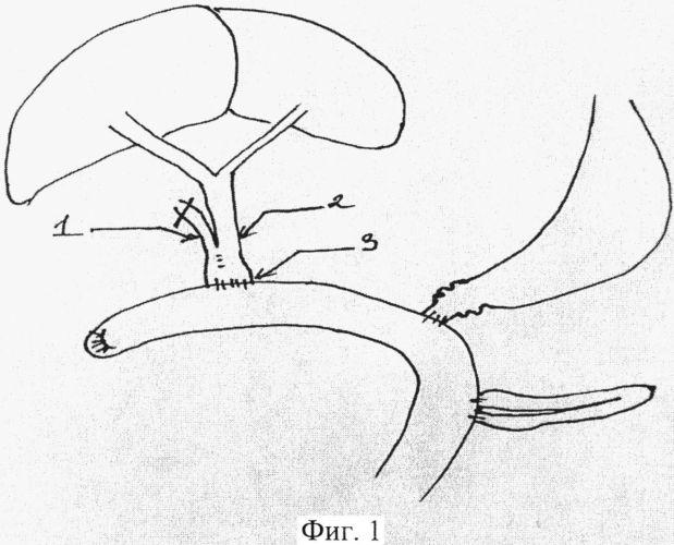 Способ наложения холедохоэнтероанастомоза