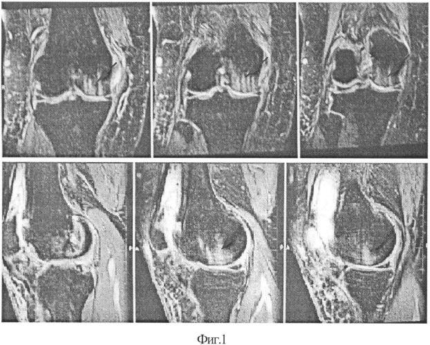 Способ восстановления дефектов гиалинового хряща суставных поверхностей суставов конечностей