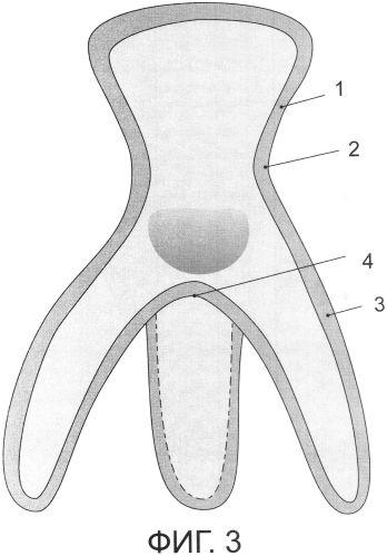 Зубной имплантат чулочного типа в закрытом исполнении