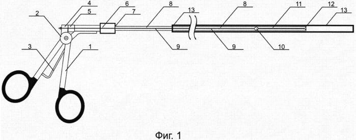 Способ хирургического лечения уретерогидронефроза и устройство для его осуществления