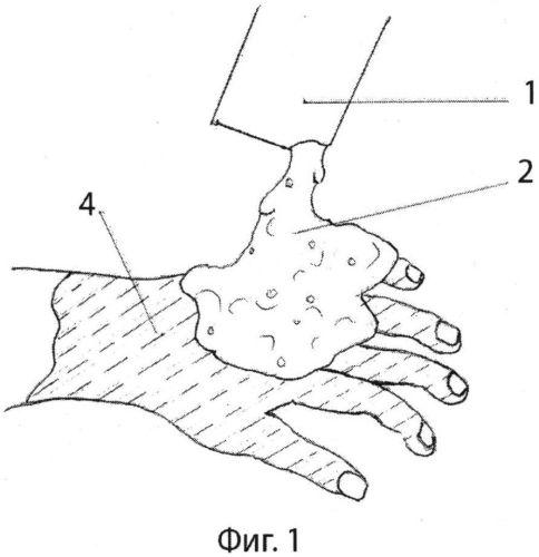 Способ лечения ожогов кисти и профилактики послеожоговых рубцовых деформаций и синдактилий