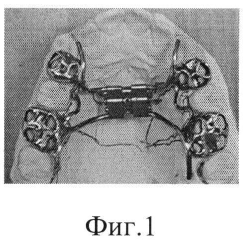 Способ трансверзального расширения верхнего зубного ряда