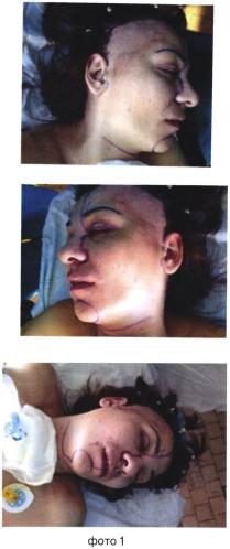 Способ формирования доступа при хирургическом лечении распространенных новообразований придаточных пазух носа и основания черепа