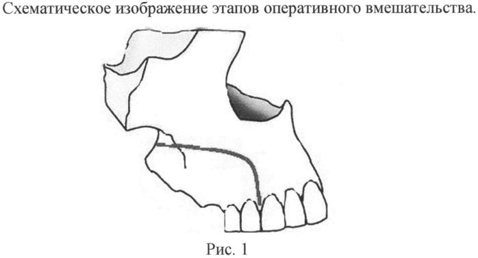 Способ хирургического лечения остеонекроза верхней челюсти
