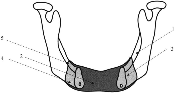 Способ замещения послеоперационного дефекта нижней челюсти