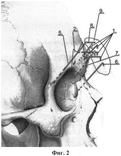 Малотравматичная методика наружной фиксации отломков при переломе передней стенки лобной пазухи
