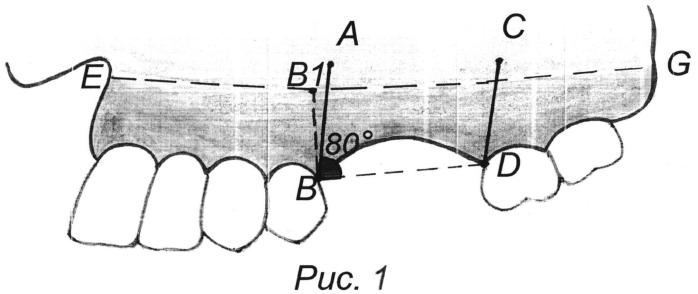 Способ туннельного метода костной пластики для реконструкции альвеолярной кости челюстей