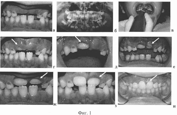 Способ стимуляции задержавшихся в прорезывании постоянных зубов