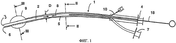 Катетер для струйной вентиляции